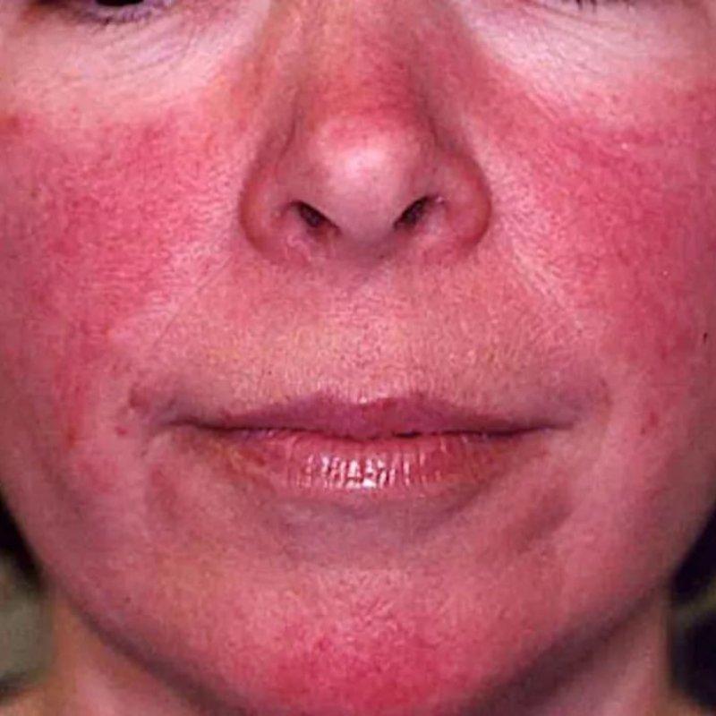 Чем может быть вызвана гиперемия лица?