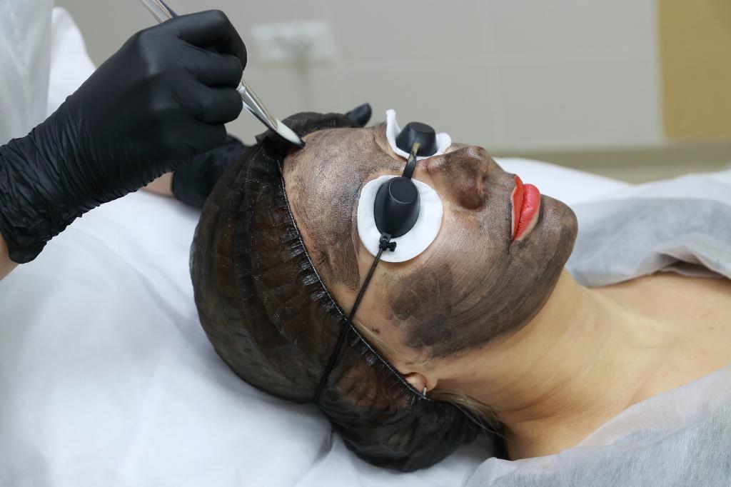Лазерный карбоновый пилинг лица: показания и противопоказания