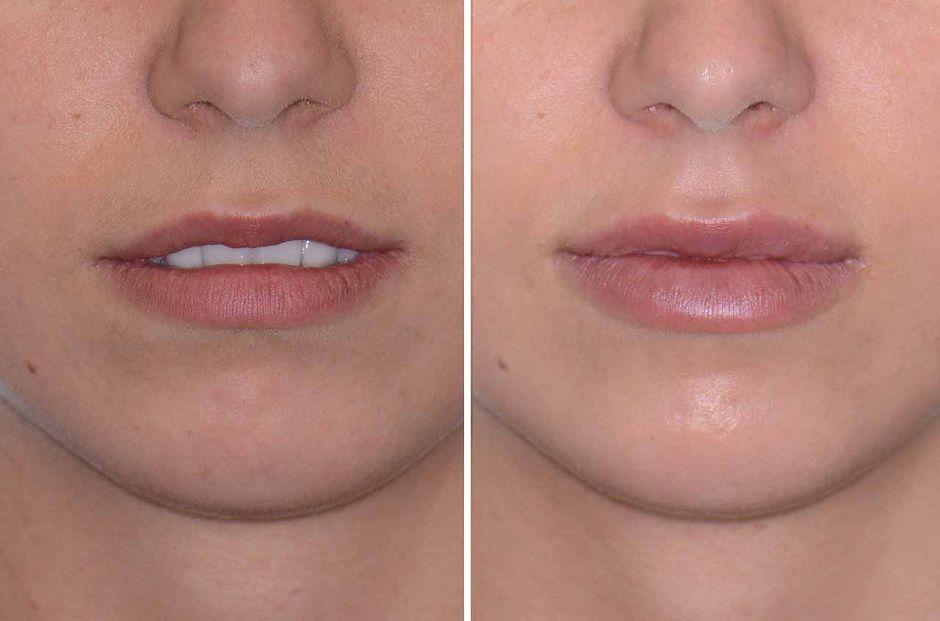 Противопоказания и показания к инъекционному увеличению губ гиалуроновой кислотой. подготовка губ и уход после процедуры увеличения гиалуроновой кислотой. как проходит процедура увеличения губ. фото до и после увеличения губ