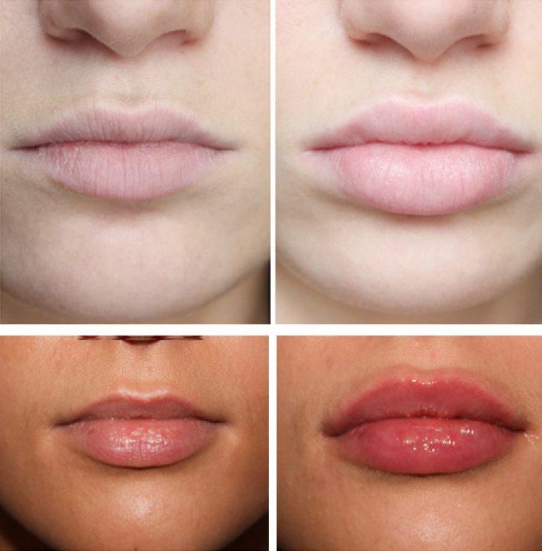 Неровные губы после увеличения — причины и способы устранения проблемы