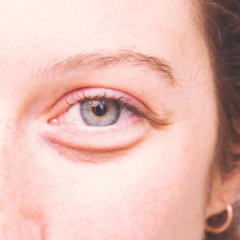 Почему у женщин отекает лицо по утрам: 10 причин и лучшие методы лечения