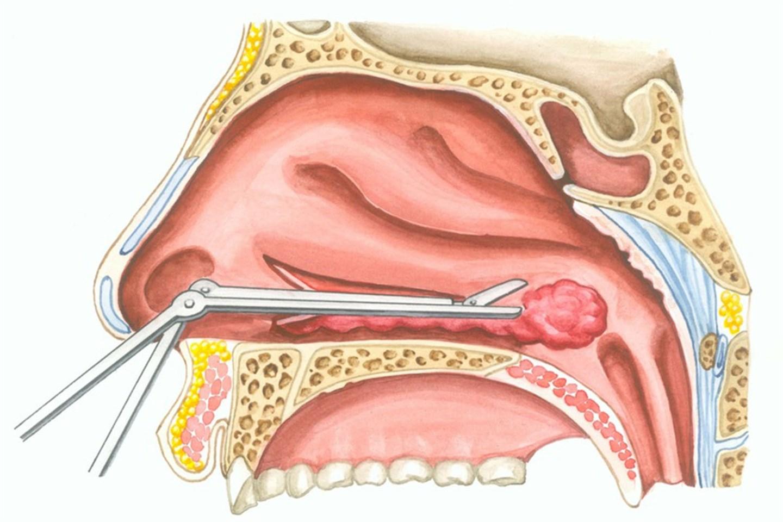 Вазотомия носовых раковин: что это такое, показания, описание процедуры, эффективность