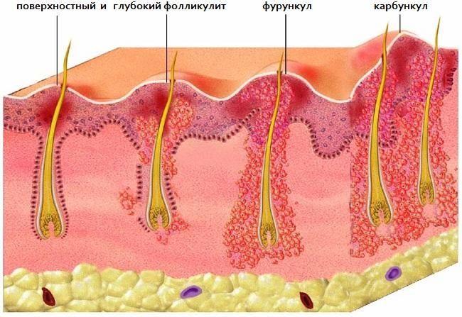 Чирей (фурункул) на теле: что такое, фото, лечение