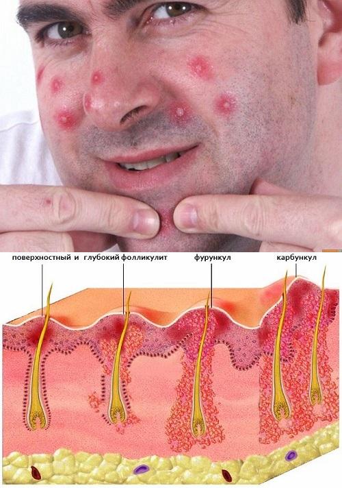 Как лечить фурункул или чирей на попе (ягодице), фото