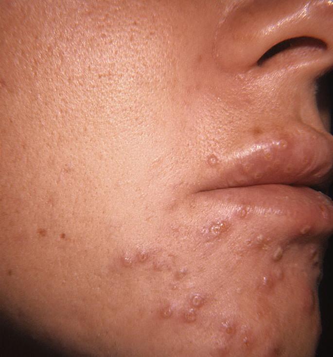 Высыпания герпеса на лице у ребенка
