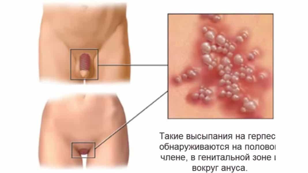 Гигантская кондилома: симптомы и лечение