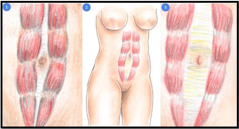 Диастаз прямых мышц живота после родов. кто виноват и что делать? | метки: это