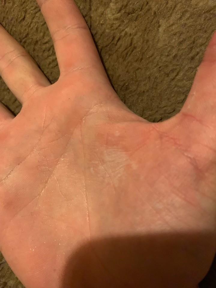 Как решить проблему шелушения кожи на руках