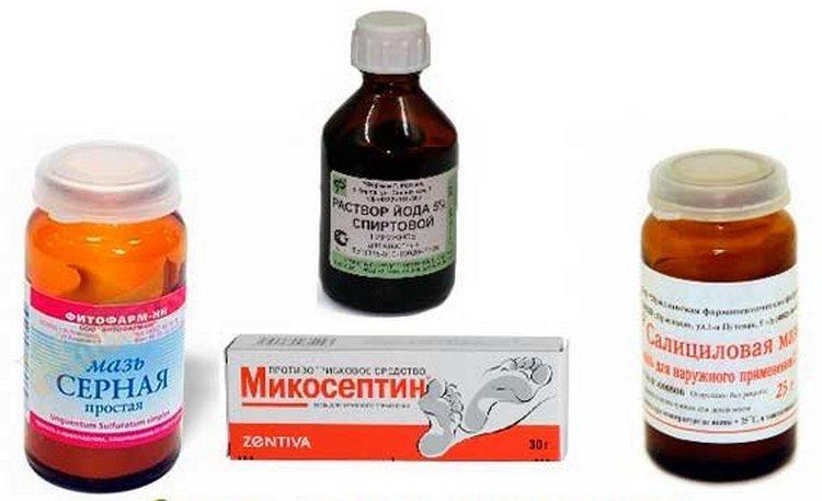 Лишай у человека: симптомы и лечение различных видов