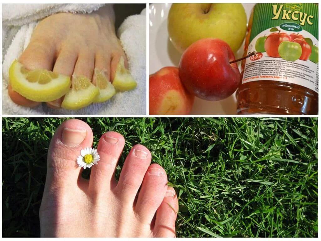 Способы лечения грибка ногтей народными средствами, самые эффективные из них