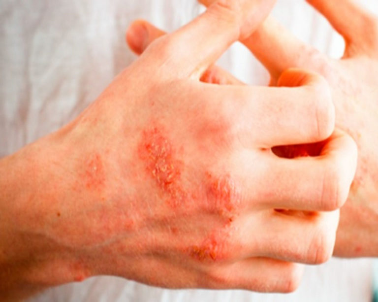 Экзема. причины, симптомы, признаки, диагностика и лечение патологии :: polismed.com