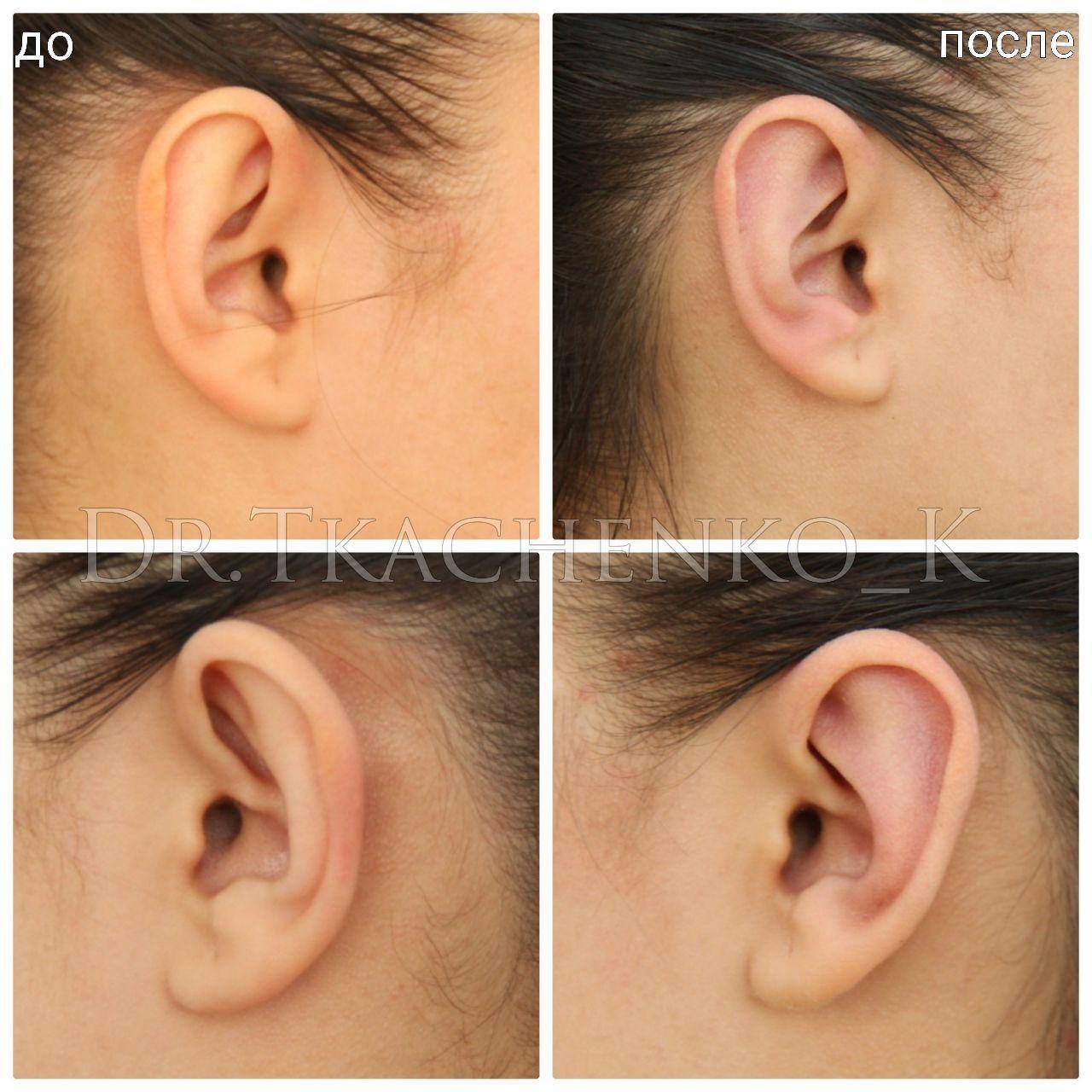 Пластика ушей (отопластика)