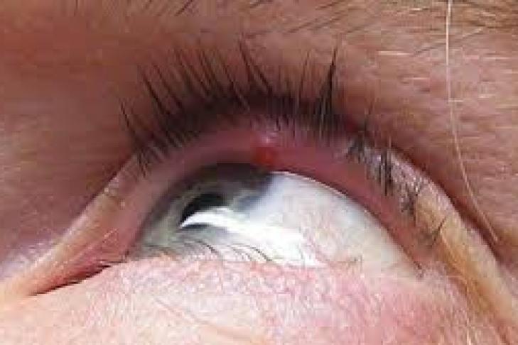 Ячмень на глазу: как лечить быстро в домашних условиях у взрослого за 1 день