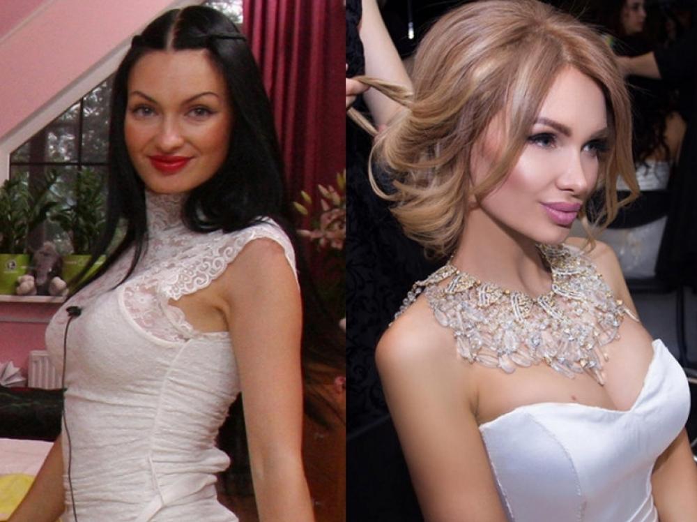 Они одинаковые! 10 российских красоток до и после пластики (фото)