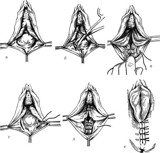 Лабиопластика: до и после. пластика половых губ - отзывы