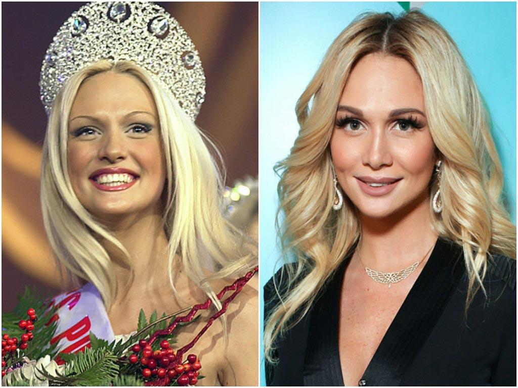 Цена красоты: звезды до и после пластики