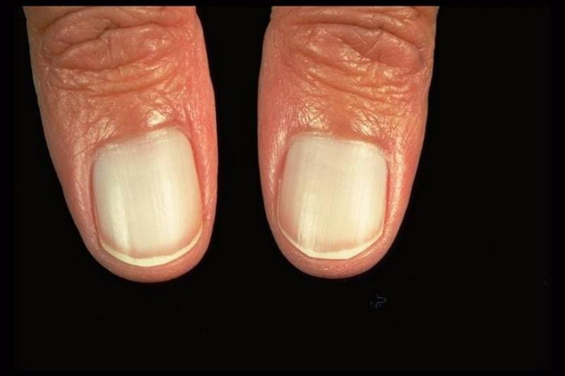 Дистрофия ногтей