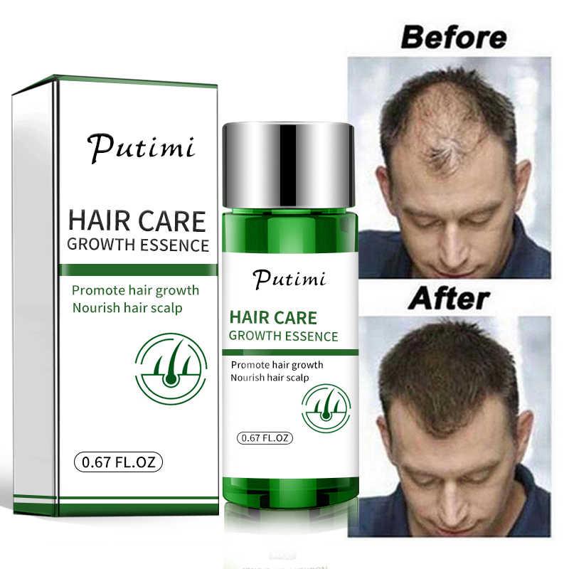 Таблетки для роста волос на голове у женщин и мужчин. лучшие витамины и препараты в аптеках. отзывы и цены