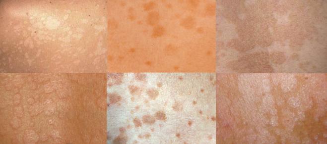 Отрубевидный (разноцветный) лишай – фото (как выглядят пятна на коже), причины и симптомы, диагностика. лечение отрубевидного лишая у детей, у взрослого человека – препараты, физиотерапия, народные средства