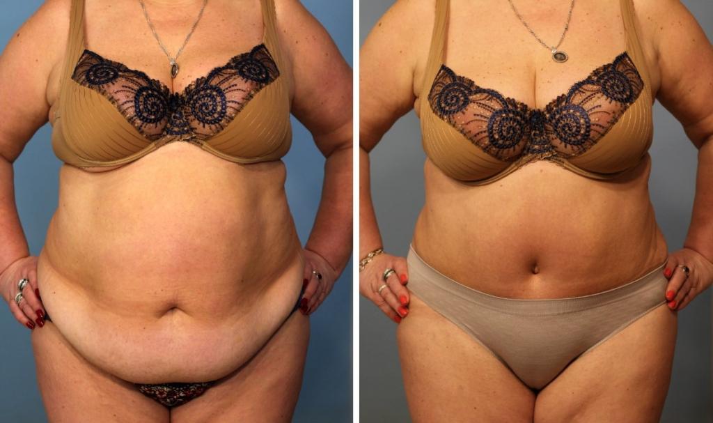 Абдоминопластика (пластика живота), операция в москве: цены, фото до и после
