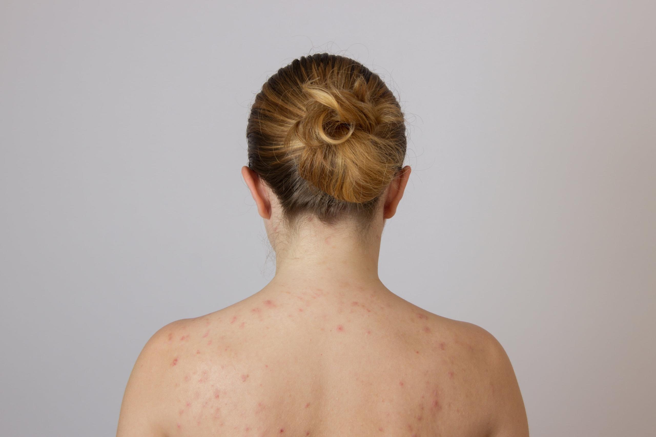 Старческая себорейная кератома лечение. как часто встречается это кератоз кожи? деструктивные методы лечения
