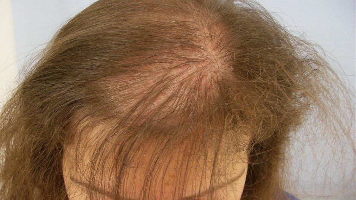 Выпадение волос у женщин (алопеция): лечение, причины, виды женского облысения, как остановить сильное, резкое и обильное выпадение волос у девушек / mama66.ru
