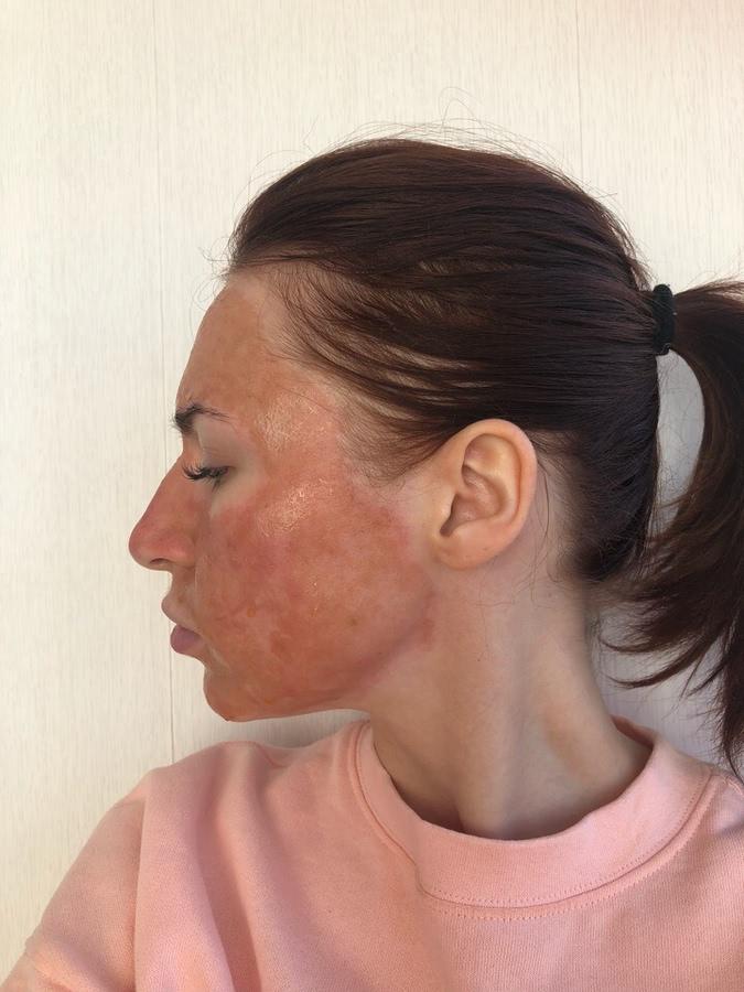 Лазерная шлифовка лица | портал о кожных заболеваниях