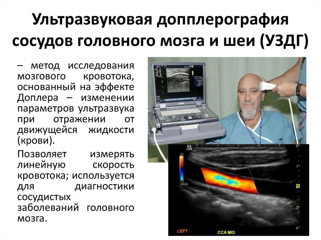 Ультразвуковая допплерография (уздг, допплерографическое исследование сосудов головы и шеи)