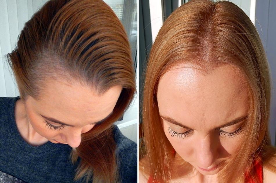 Могут ли от дарсонваля выпадать волосы