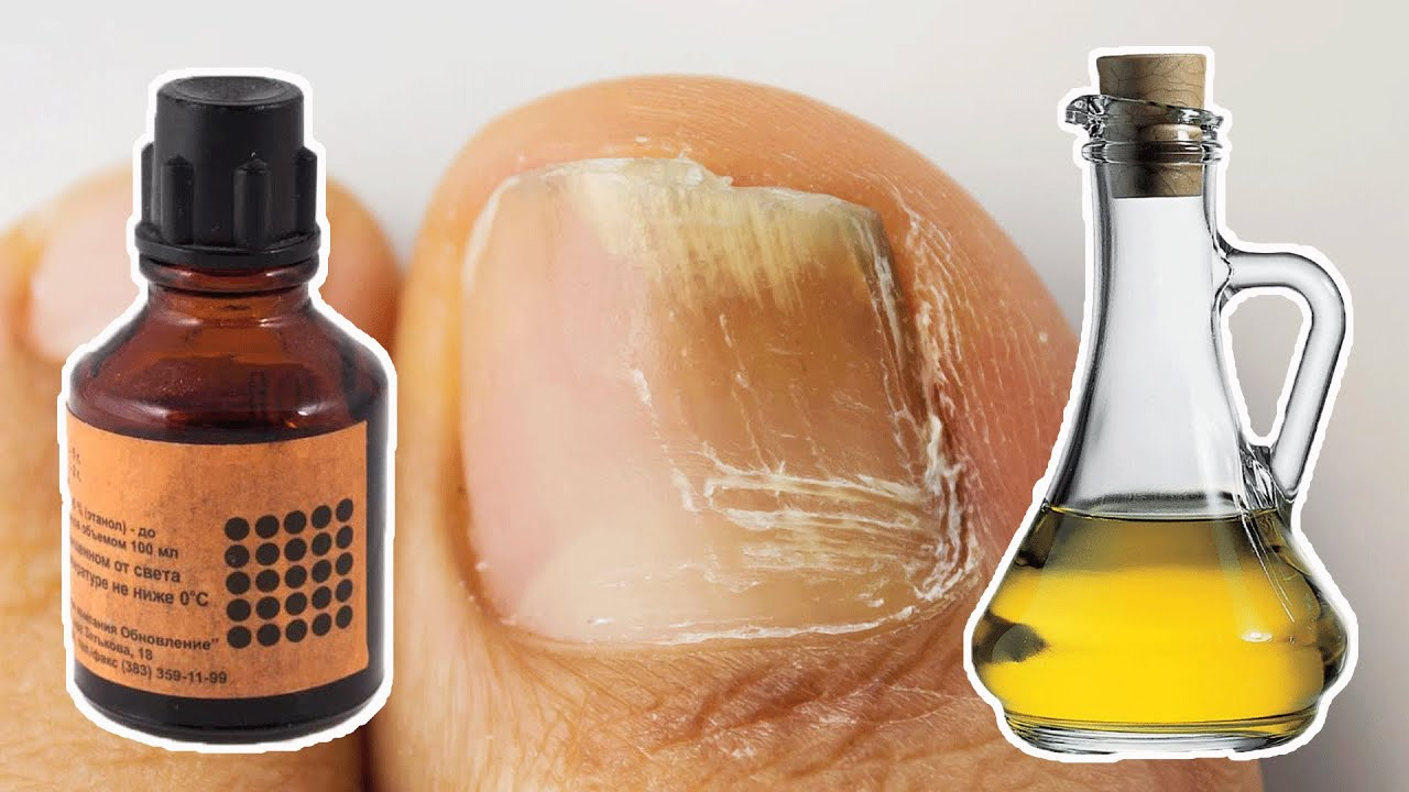 Грибок на ногтях ног: лечение народными средствами. нетрадиционные методы лечения