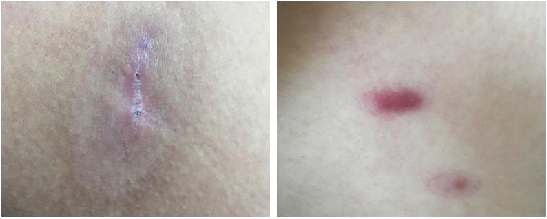 Лечение келоидных рубцов: невозможное возможно?