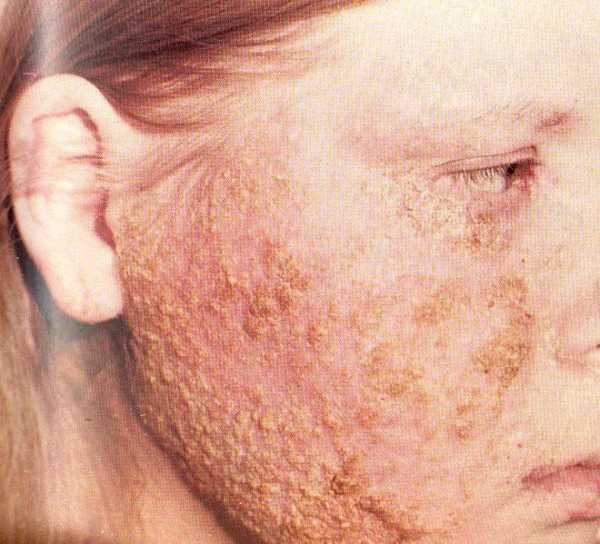 Пиодермия. причины, симптомы, признаки, диагностика и лечение патологии
