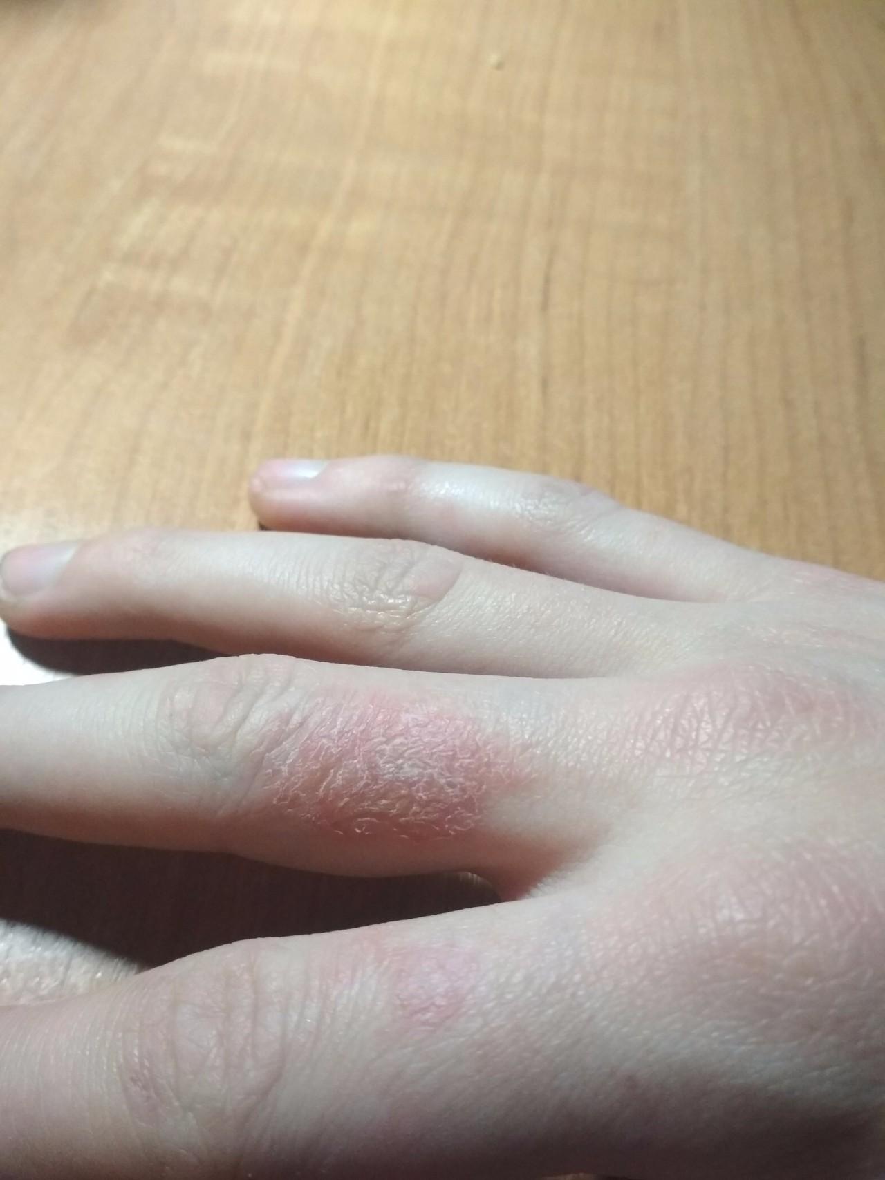 Шелушение кожи на руках — причины, способы лечения. народные рецепты избавления от шелушащейся кожи рук