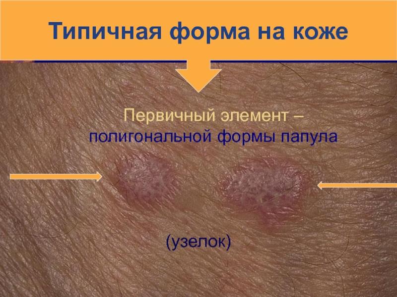 Как быстро и эффективно вылечить красный плоский лишай?