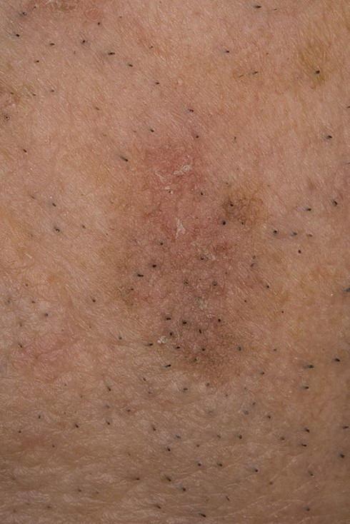 Себорейный кератоз — лечение патологии в домашних условиях