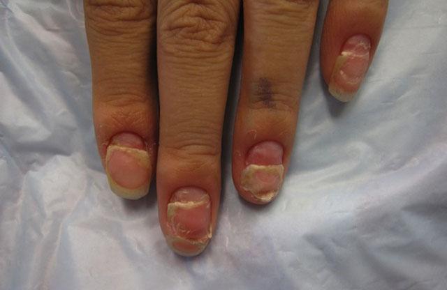 Ониходистрофия ногтей: что это такое, фото, причины, симптомы и лечение болезни, профилактика