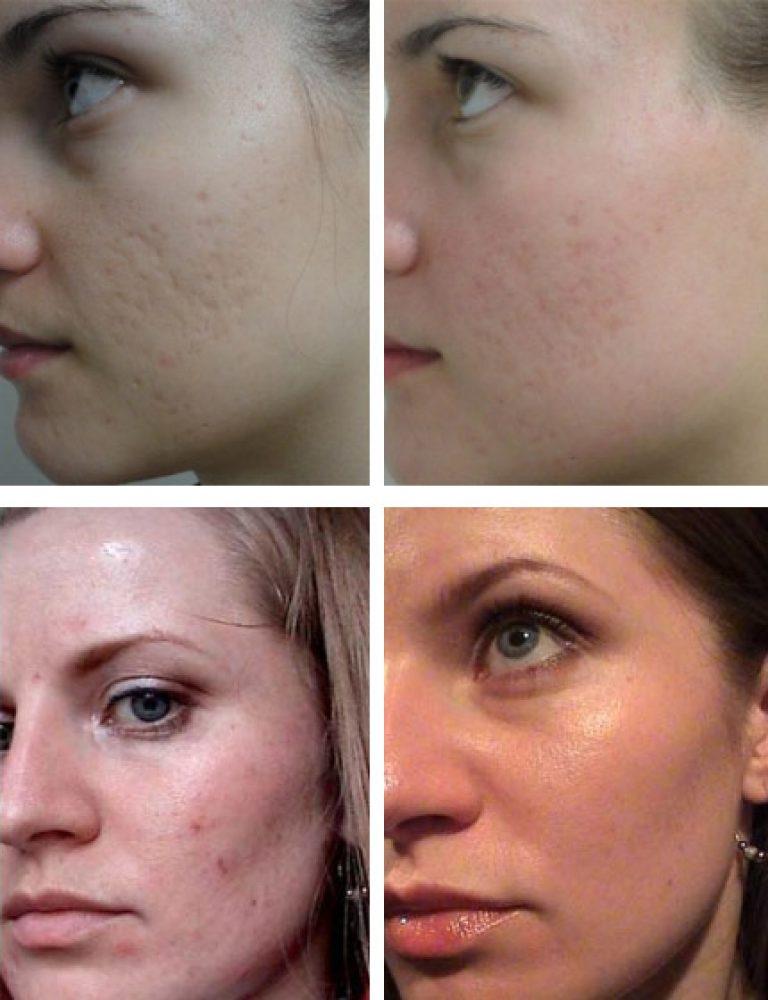 Карбоновый пилинг с фото до и после и отзывами