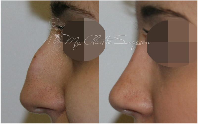Ринопластика носа — что это за операция и всё о методе
