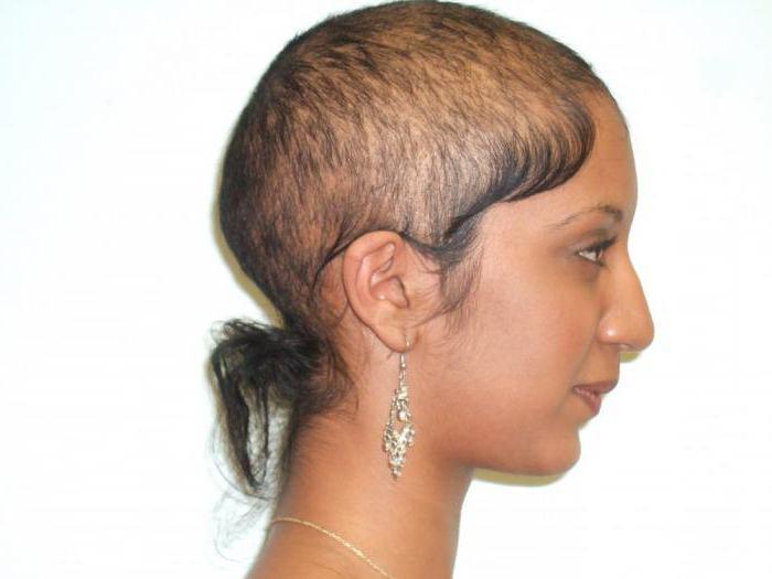 Выпадают волосы у женщин причины и способы