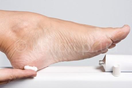 Трещины на стопах могут сигнализировать о серьезных внутренних заболеваниях