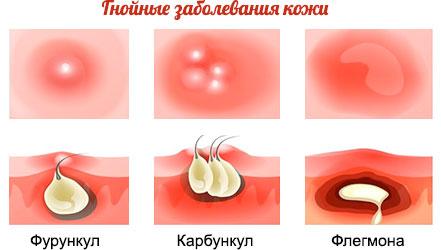 Фурункулез – причины, лечение и профилактика