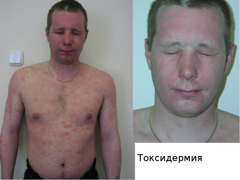 Токсикодермия