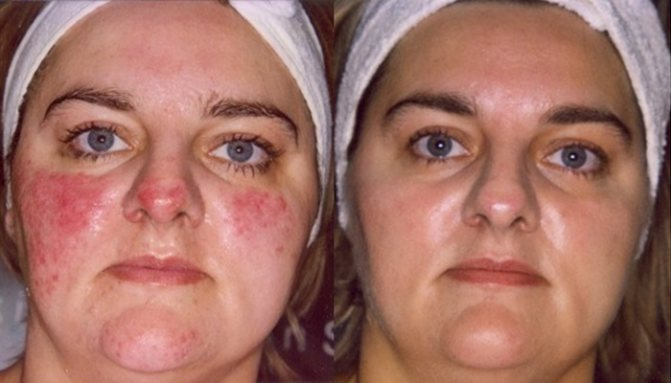 Симптомы себорейного дерматита на лице. лечение