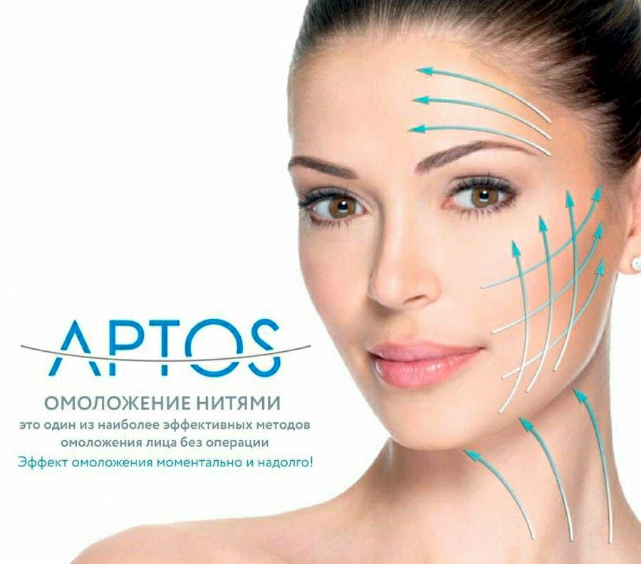 Нити аптос — подтяжка лица со своими последствиями