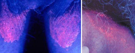 Эритразма - красные пятна на кожи
