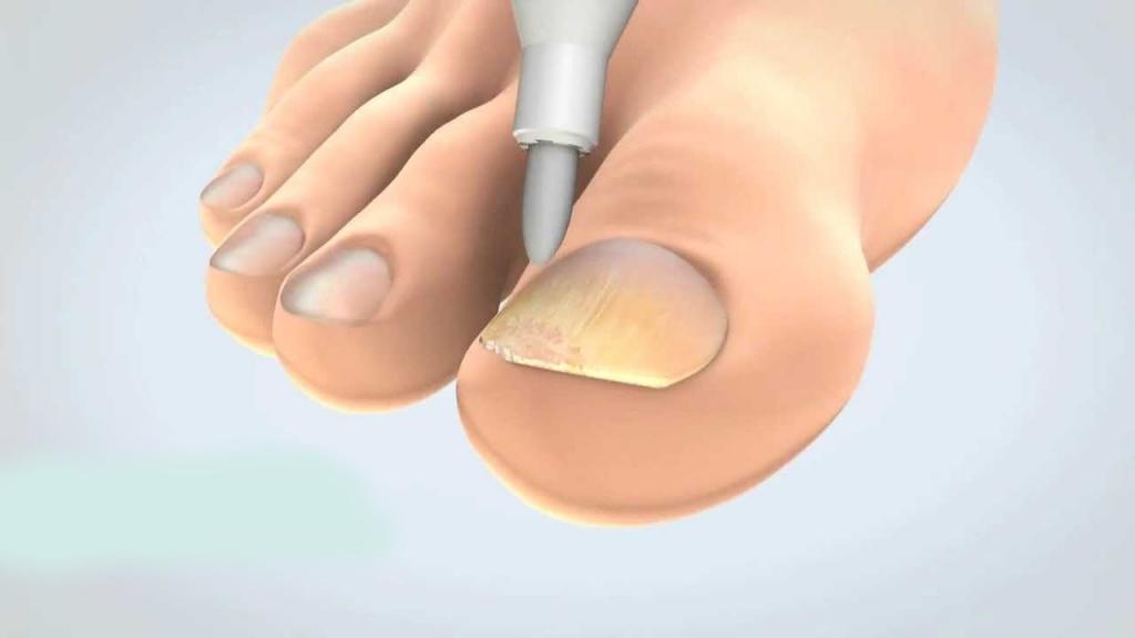 Сколько лечится грибок ногтей на ногах