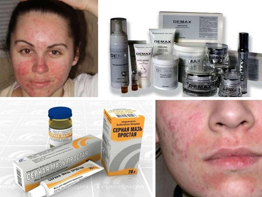 Эффективное лечение себорейного дерматита на лице