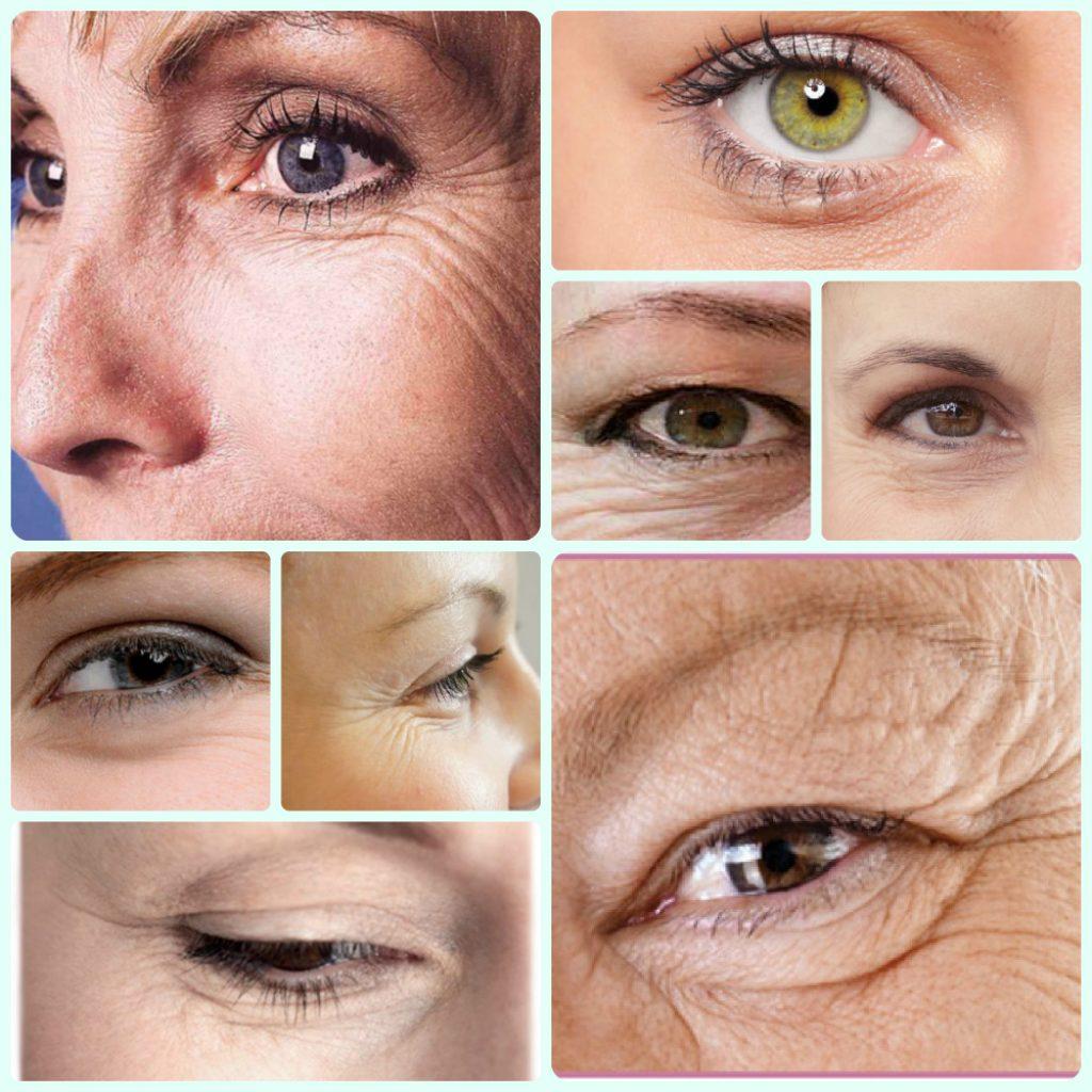 Как быстро в домашних условиях убрать глубокие морщины около глаз?