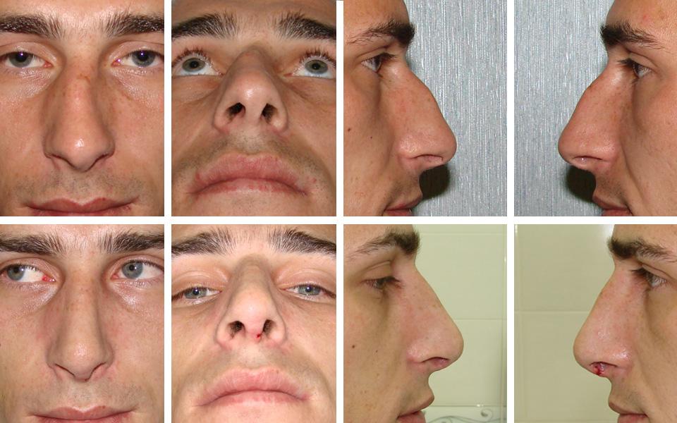 Устранение деформаций носа
