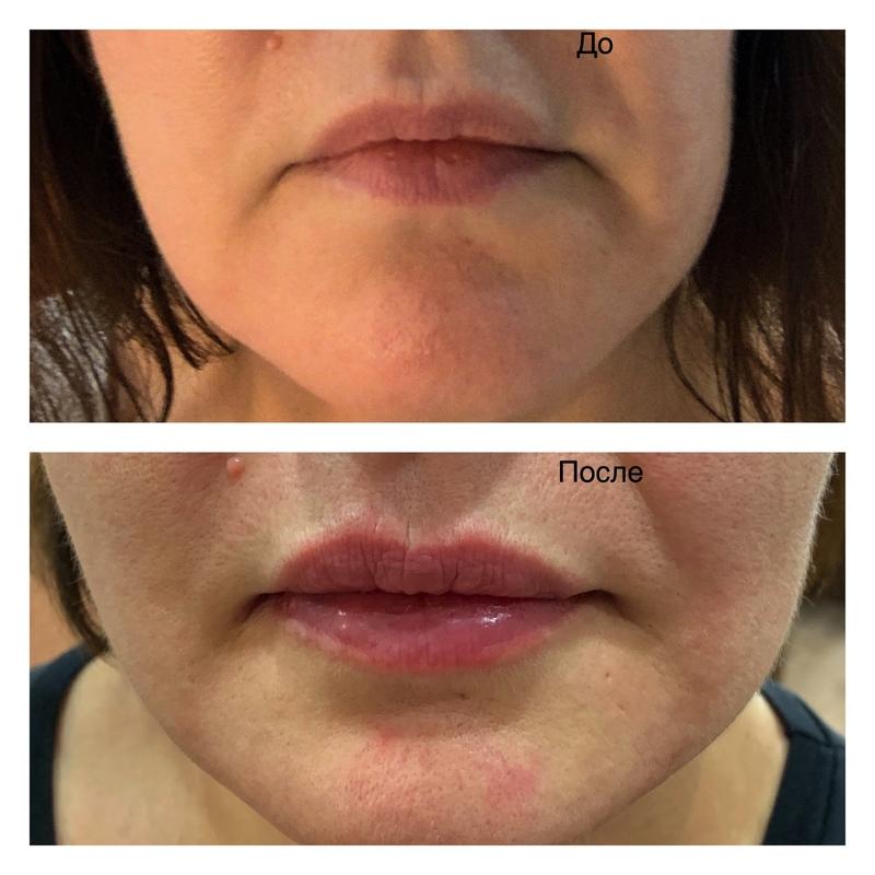 Биополимер в губы — периоды рассасывания и последствия